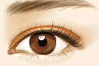 PERK双眼皮术