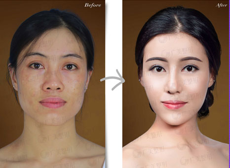 Botox瘦脸原理