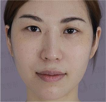大小眼、双眼皮弧度不对称