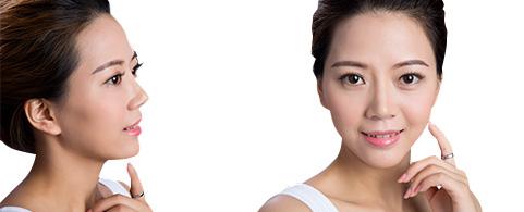 玻尿酸在人类皮肤的真皮层中扮演了非常重要的角色