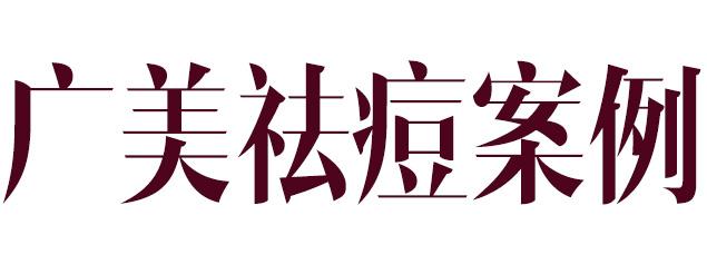 广美祛痘案例
