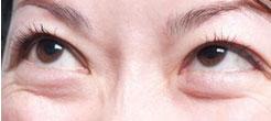 水肿型眼袋多属于假性眼袋,是 因为哭泣、熬夜、喝水多等导致眼下方水肿而形成眼袋。