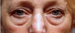 松弛型眼袋是指下睑及外眦皮肤松弛,但无眶隔松弛,故无眶隔脂肪突出,眼周出现细小皱纹。