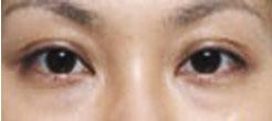 沟型眼袋是由于脂肪层的下垂及肌肉层松弛而逐渐形成的眼袋,即出现眼袋也有泪沟凹陷的眼袋类型。