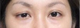 双眼皮不对称