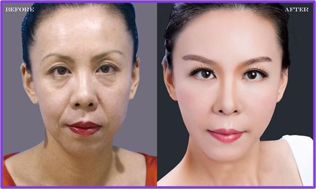 Botox瘦臉原理