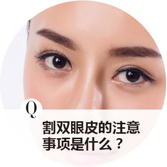 割雙眼皮的注意事項是什么