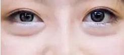 脂肪型眼袋是指眶隔筋膜内脂肪颗粒膨大,并向外下方突出为主而形成的眼袋。