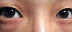 混合眼袋是指既有眶隔脂肪膨出型眼袋的问题,同时又伴有不同程度的下眼睑皮肤松弛与皮肤皱褶的眼袋类型。