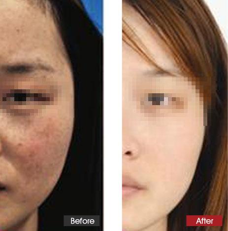 广州市燕岭大厦_晒斑的病理特征解析-晒斑的形成-晒斑专题