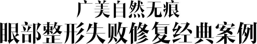 广美郑重承诺:面部整形负责制,给您一辈子的放心